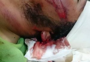 Close up of injury to the man' s head