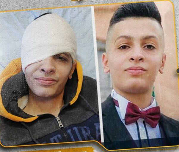 Deze afbeelding heeft een leeg alt-atribuut; de bestandsnaam is Bashar-Elayan-15-injured-e1605850969815.jpg